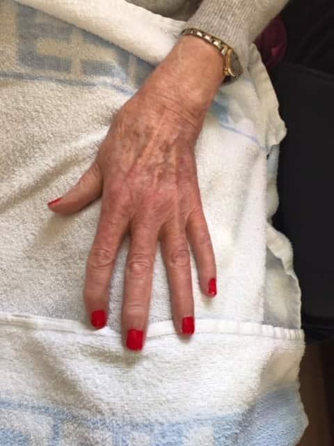 lakke negler privat omsorg for eldre